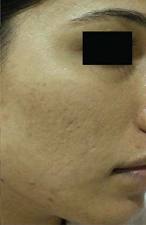Pore, hiperpigmentacija, akne poslije