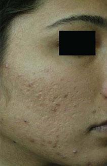 Pore, hiperpigmentacija, akne prije